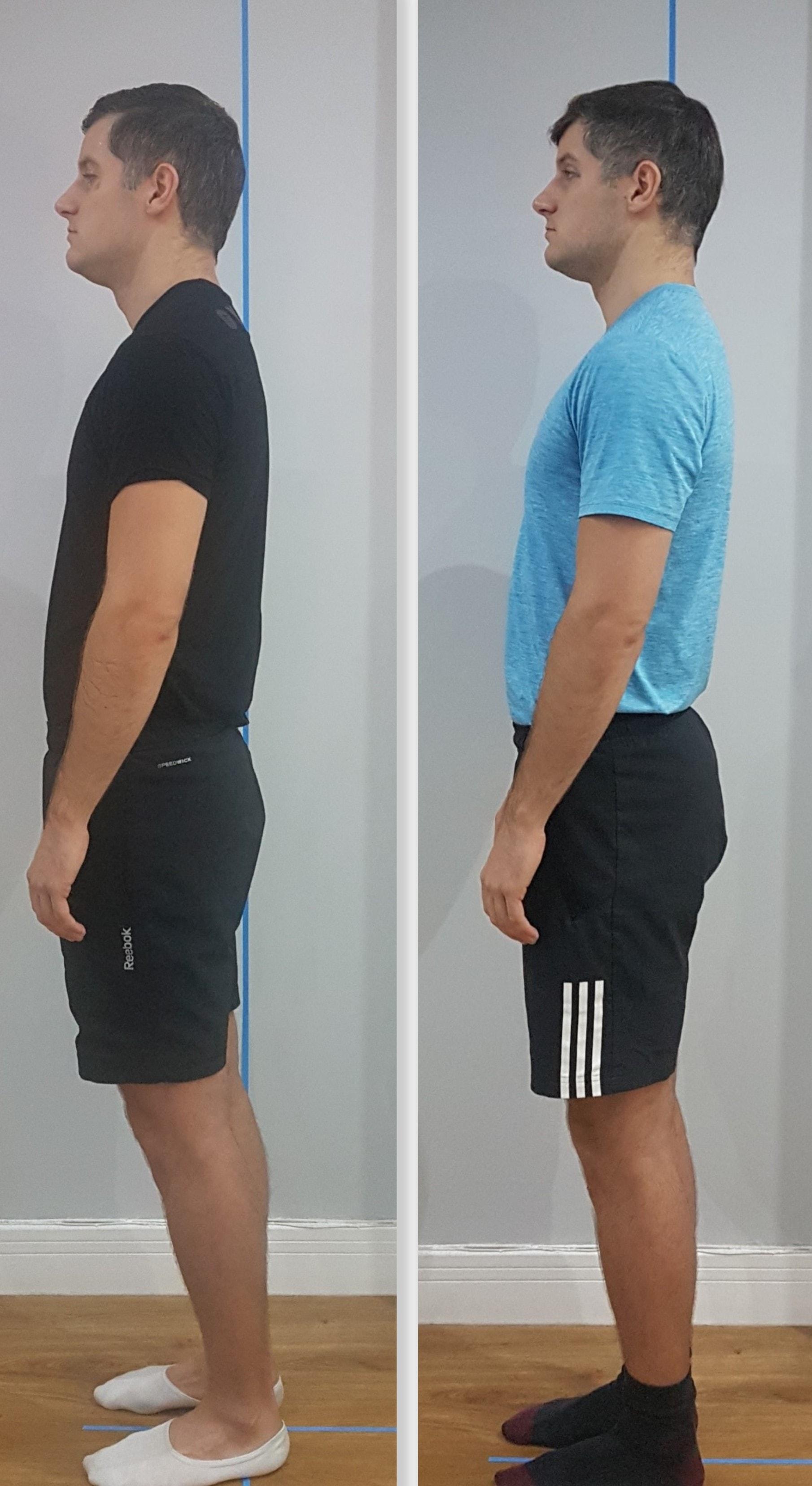 Posture Correction