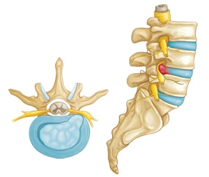 Disc herniation treatment 1