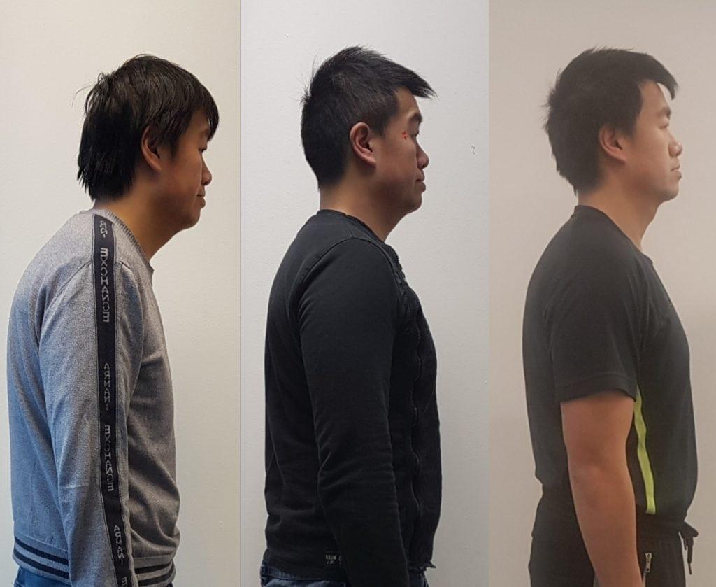 Simple posture test - Treatment progression 1