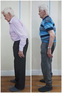 posture correction 5