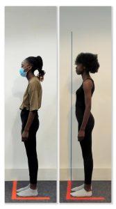 posture correction 1